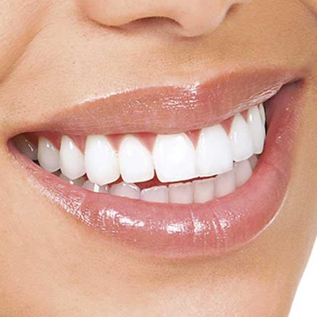 ¡Evita el Sarro Dental con nuestros NovaConsejos!